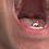 Thumbnail: Alex Swallows Tiny Brother