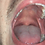 Thumbnail: Ian's Big Mouth & Tongue
