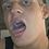 Thumbnail: Logan's Big Mouth & Tongue