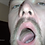 Thumbnail: Hunter's Mouth & Tongue