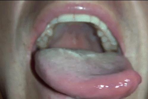 Kaden's Big Mouth & Tongue