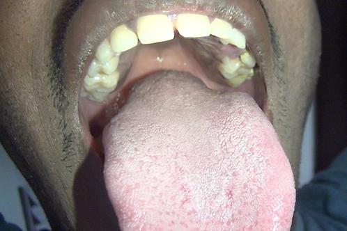 Aaron's Big Mouth & Tongue