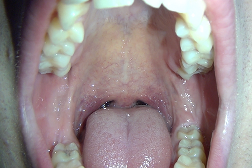 Justin's Huge Mouth & Tongue