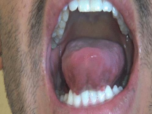 Emilio's Big Pink Tongue