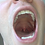 Thumbnail: Mark's Mouth Explored- Double Feature