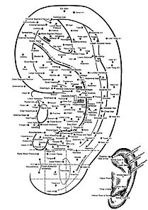 Ear-Acupuncture-l.jpg