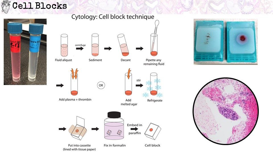 Cell blocks in cytology