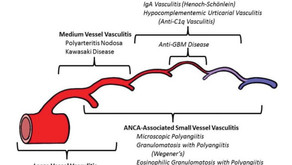 Vasculitis: A Quick Review