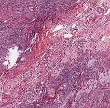 Cystadenofibroma with Brenner tumor.png