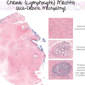 Diabetic Mastopathy (Chronic lymphocytic mastitis)