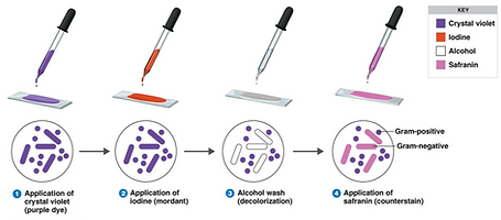 gram-stain-procedure.png