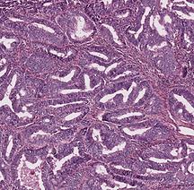Endometrioid adenocarcinoma of ovary.png