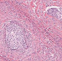 Brenner Tumor.png