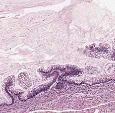 Mucinous Cystadenoma.png