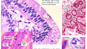 A Histology Tour of the GI Tract- Small Intestines Overview