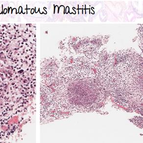 Granulomatous Mastitis