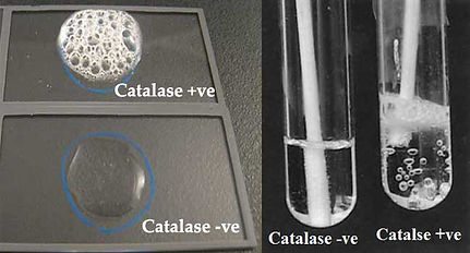 Result-Interpretation-of-Catalase-Test-a