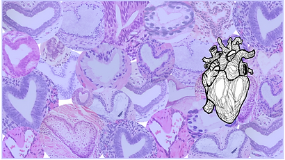anatomical heart bckgd purple_edited.png