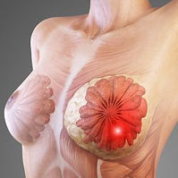 High Yield Breast Pahology Learning