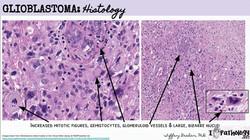 NeuroPathology (36)