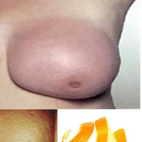 Acute Mastitis/Breast Abscess