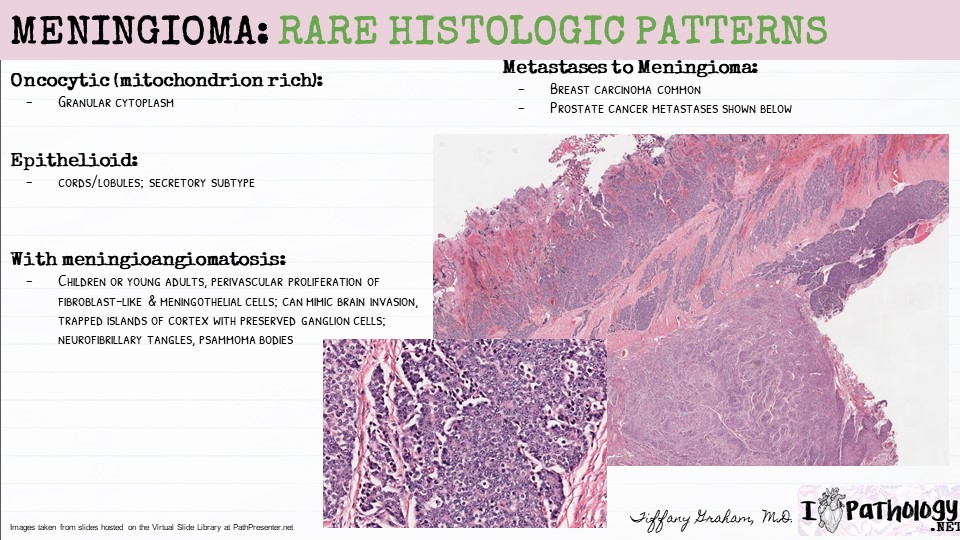 Rare types of meningioma
