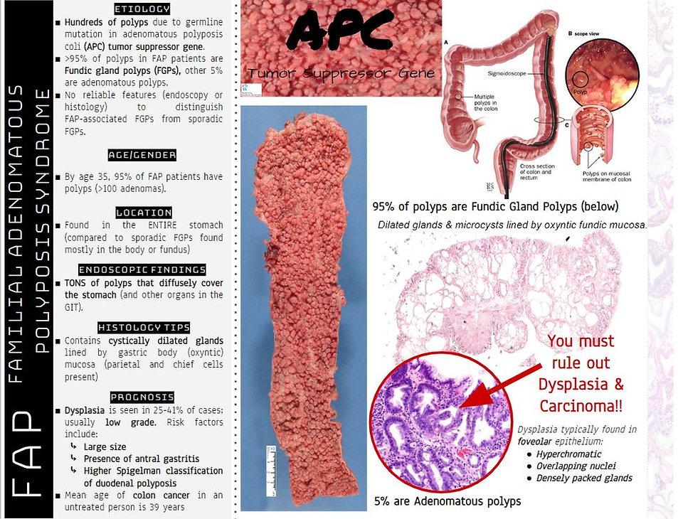 FAP syndrome.JPG