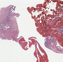 Ectopic tubal gestation.png
