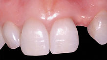 Implant - Photo Missing Tooth.jpeg