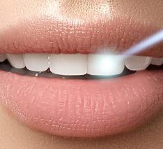 Laser on mouth.jpeg