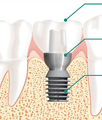 Implant Parts copy.jpg