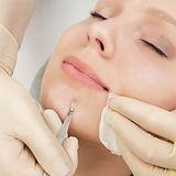 como-hacer-una-limpieza-facial-profunda_17745_l.jpg