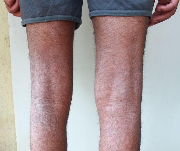 legs%20backside%20%20after_edited.jpg