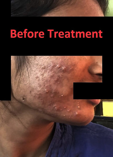 acne, acne treatment, blemish, dark circles, dark spots, skin treatment, acne problem, beauty treatments, pimple, benzoyl peroxide, blackheads, pimple cream, skin whitening, acne scars, chemical peel, pimples on face, benzoyl peroxide gel, skin clinic near me, cystic acne, adapalene gel, dark spots on face, salicylic acid face wash, clindamycin gel, home remedies for pimples, skin lightening, dark circles under eyes, acne cream, comedones, pimple treatment, skin peeling, black spots on face, skin whitening treatment, dark spot remover, black spots on skin, melasma treatment, acne scar removal, microneedling back acne, sun spots, skin tightening, skin lightening treatment, acne face wash, home remedies for acne, pimples on forehead, benzoyl peroxide face wash, best pimple cream, home remedies for dark circles, adapalene types of acne, benzoyl peroxide cream, acne scar treatment, dark circle treatment, acne rosacea, oatmeal bath, acnestar gel, pimples on back, tea tree oil for acne