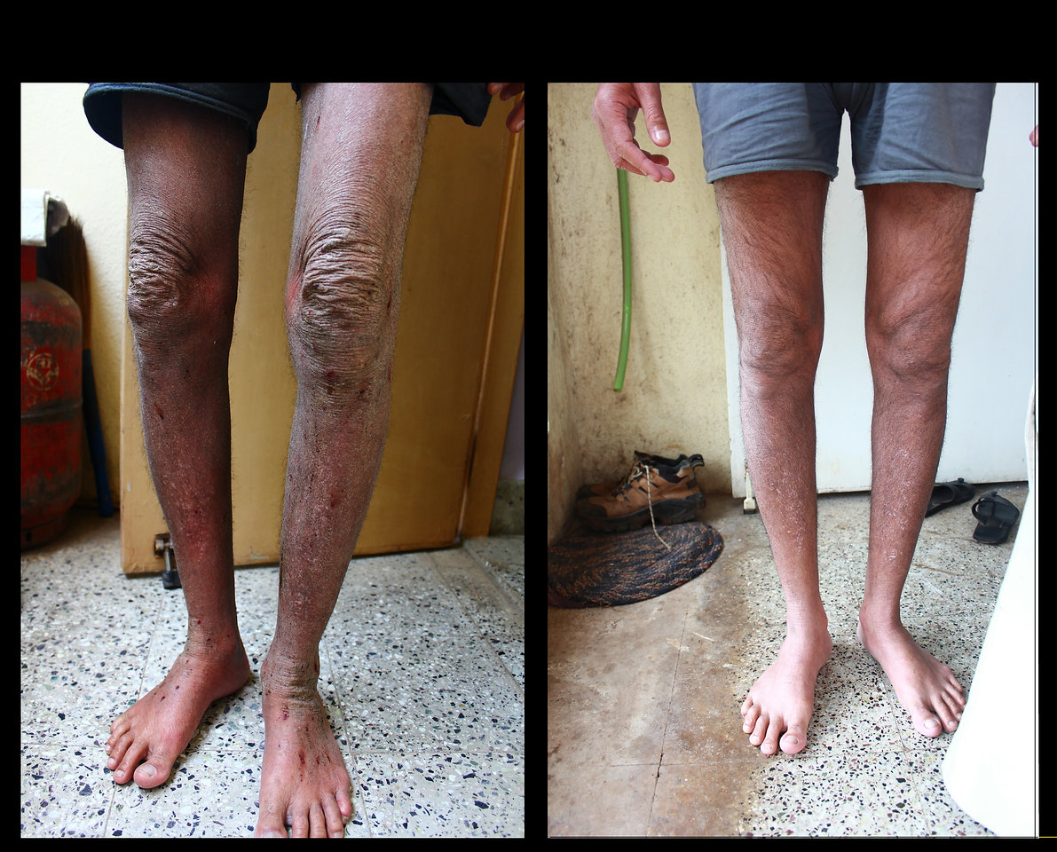 legs front after.JPG