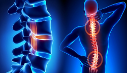 Diseases Related To Spine