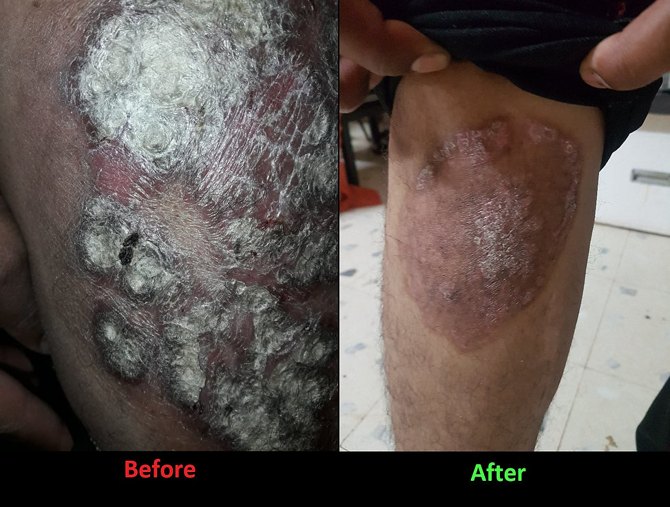 psoriasis legs ; homeopathy treatment for psoriasis ; homeopathy medicine for psoriasis ; psoriasis best medicine ; is psoriasis curable ; psoriasis before after images ; best doctor for psoriasis ; best skin sspecialist ; dermatologist pune ;