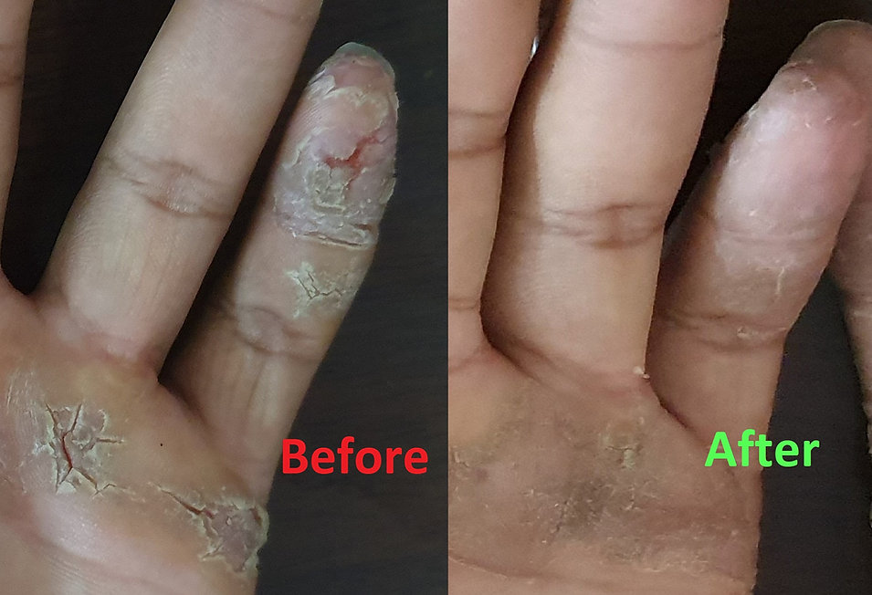 eczema on hands , eczema on palms , what is eczema , is eczema curable , food for eczema ,medicines for eczema ,hot to treat eczema ,is eczema genetic , best homeopathic medicine for eczema , doctor thombare ,doctor thombre's ; doctor thombare homeopathy , cured cases by doctor thombare , before after images of eczema ,cracked skin of hands , cracks on palm skin