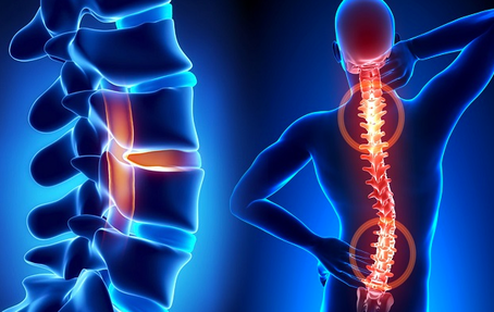 Giving Homeopathic Remedies for Chronic Back Pain