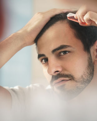 young-man-applying-lotion-for-alopecia-a