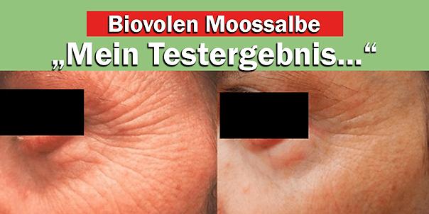 moossalbe vorher-nachher (1).png