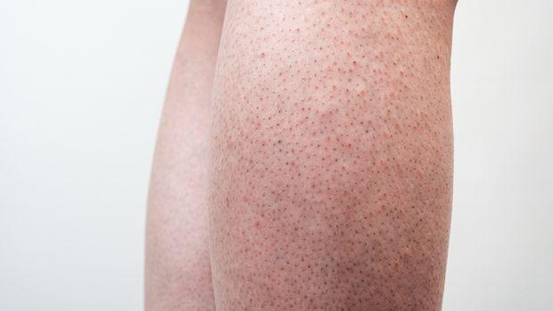 erdbeerbeine ohne rasur