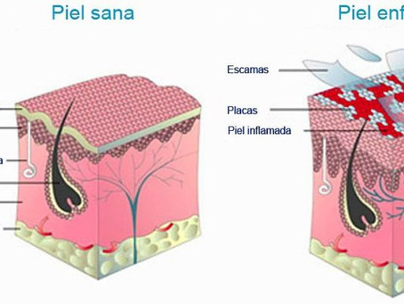 Descubre cómo aliviar los efectos de la psoriasis