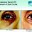 Thumbnail: Intensive Serum DC (Tratamento para Olheiras) - 15ml