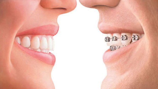 Clear aligners vs. braces