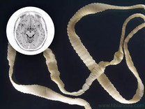 Za úpornou bolestí stála larva tasemnice