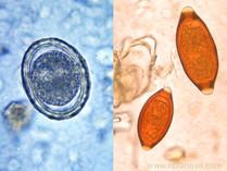 Paraziti z hrobu ukazují, jakým byli ve středověku problémem
