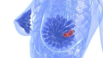 """""""Rakovina"""" prsu - případ paní V.S."""