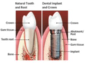 natural tooth vs implant