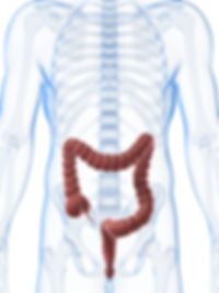 what is bowel cancer, what is colon cancer, what is irritable bowel syndrome